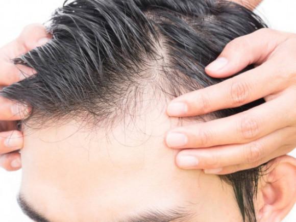 Transplantacija kose - sve što ste želeli da znate